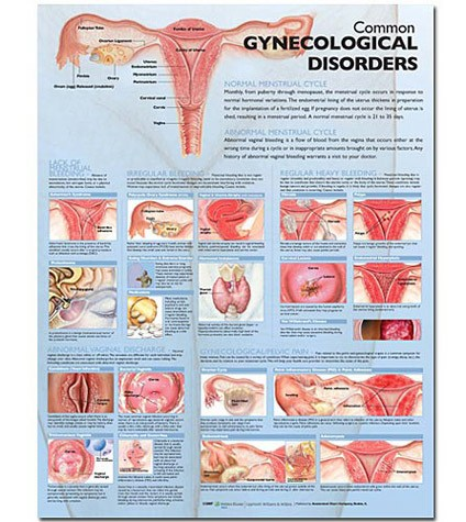 Common Gynecological Disorders Anatomical Chart