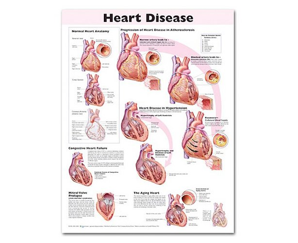 Anatomical World Wide Heart Disease Anatomical Chart, 2nd Edition