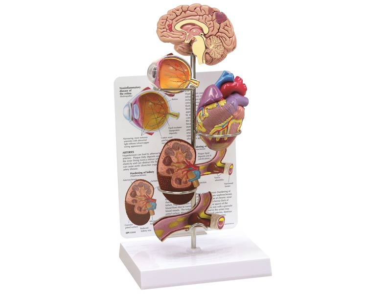 Anatomical World Wide Hypertension Anatomy Model Set