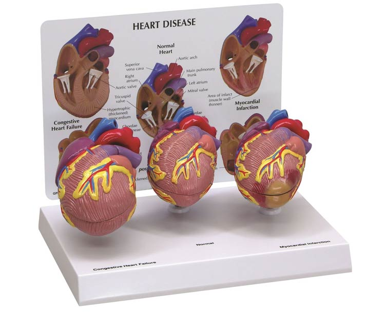 Anatomical World Wide Mini Heart Anatomy Models Set - 3 Piece