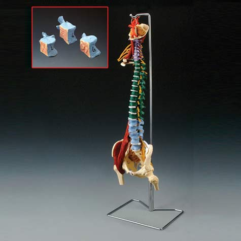 Anatomical World Wide Muscle Spine With Disorders Model with Stand
